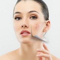 Рацион проблемной кожи. Аптечная косметика